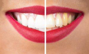 Sbiancamento dentale - Dentista Foggia - Dental Solutions