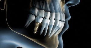 Implantologia - Dentista Foggia - Dental Solutions