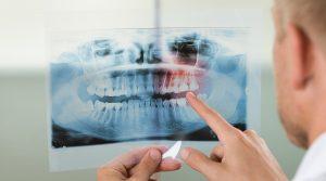 Panoramiche - Dentista Foggia - Dental Solutions
