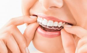 Ortodonzia - Dentista Foggia - Dental Solutions